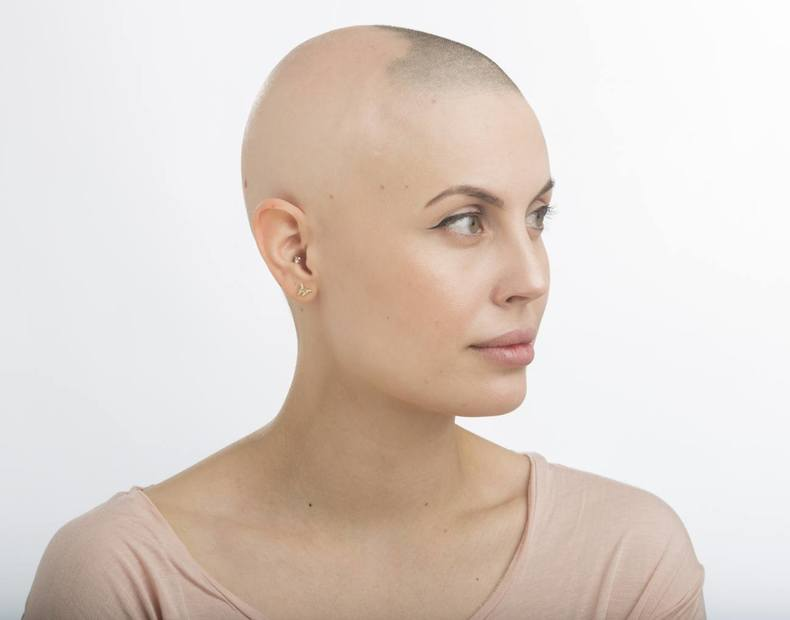 Alopecia Areata Varierande Flackvis Haravfall